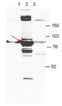 Western blot - Anti-RBM35A antibody [27H12] (ab106585)