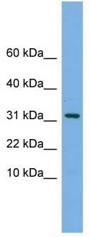 Western blot - MRPS6 antibody (ab106588)