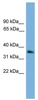 Western blot - G protein beta 4 antibody (ab106599)