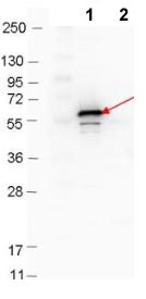 Western blot - Anti-Decorin Binding Protein B antibody (ab106608)