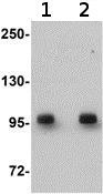Western blot - DCAMKL2 antibody (ab106639)