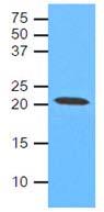 Western blot - Caveolin 1 antibody [AT4C1] (ab106642)