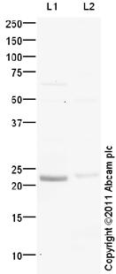 Western blot - TREM1 antibody (ab106672)