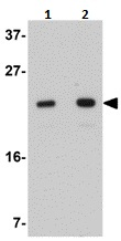 Western blot - LYRM2 antibody (ab106686)