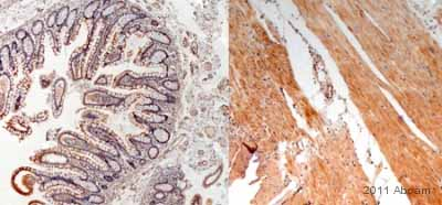Immunohistochemistry (Formalin/PFA-fixed paraffin-embedded sections) - Anti-IL13 antibody (ab106732)