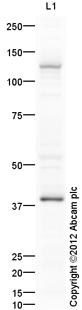 Western blot - Anti-KLB antibody (ab106794)