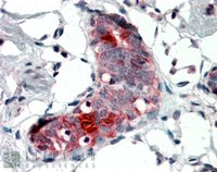 Immunohistochemistry (Formalin/PFA-fixed paraffin-embedded sections) - Mammaglobin A antibody (ab106803)