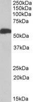 Western blot - ALDH5A1 antibody (ab106819)