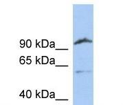 Western blot - Anti-Matriptase 2 antibody (ab106842)