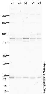 Western blot - Anti-MPP5 antibody (ab106850)
