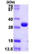 SDS-PAGE - deoC protein (ab106864)