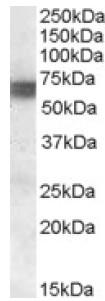 Western blot - BIN1 antibody (ab106937)