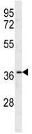 Western blot - Anti-Olfactory receptor 10X1 antibody (ab106966)