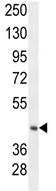 Western blot - C20orf7 antibody (ab106984)