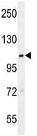 Western blot - Anti-ACAD10 antibody (ab107034)