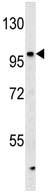 Western blot - KIAA1688 antibody (ab107035)