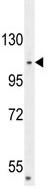 Western blot - CENPC antibody (ab107068)