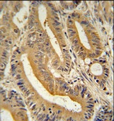 Immunohistochemistry (Formalin/PFA-fixed paraffin-embedded sections) - AP3S1 antibody (ab107071)