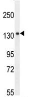 Western blot - KIAA1199 antibody (ab107073)