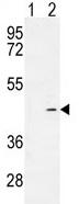 Western blot - ADH4 antibody (ab107075)