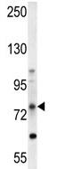Western blot - ABCD1 antibody (ab107094)