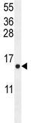 Western blot - ATP6V0B antibody (ab107189)
