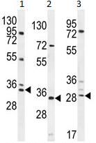 Western blot - C11orf17 antibody (ab107196)