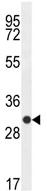 Western blot - CTLA4 antibody (ab107198)