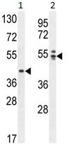 Western blot - ANKRD16 antibody (ab107199)