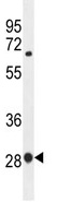 Western blot - BTF3 antibody (ab107213)