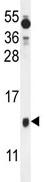 Western blot - Bex1 antibody (ab107215)