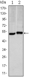 Western blot - Carbonic Anhydrase IX antibody [2D3] (ab107257)