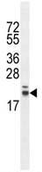 Western blot - RNF185 antibody (ab107333)