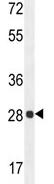 Western blot - PGAM2 antibody (ab107397)