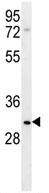 Western blot - LRRC52 antibody (ab107410)