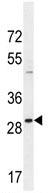 Western blot - SLC25A34 antibody (ab107414)