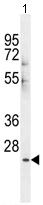 Western blot - CES1P1 antibody (ab107487)