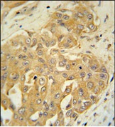 Immunohistochemistry (Formalin/PFA-fixed paraffin-embedded sections) - GFM1 antibody (ab107496)