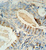 Immunohistochemistry (Formalin/PFA-fixed paraffin-embedded sections) - GCNT2 antibody (ab107511)