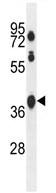 Western blot - SPATA2L antibody (ab107528)