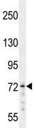 Western blot - MED25 antibody (ab107551)