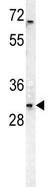 Western blot - DcR3 antibody (ab107693)