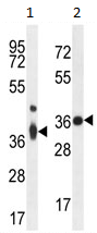 Western blot - TMBIM4 antibody (ab107737)