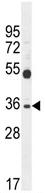 Western blot - SULT1C3 antibody (ab107740)
