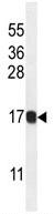 Western blot - HIST1H2BJ antibody (ab107806)