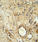Immunohistochemistry (Formalin/PFA-fixed paraffin-embedded sections) - ITIH5 antibody (ab107846)