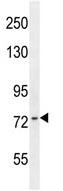 Western blot - ZNF493 antibody (ab107876)