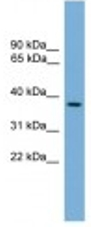 Western blot - C14orf28 antibody (ab107929)