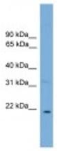 Western blot - Cardiotrophin 1 antibody (ab107934)