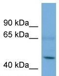 Western blot - ASB3 antibody (ab107937)